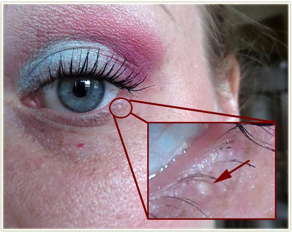 Milia Under Eyes Treatment